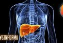 6 coisas que você precisa saber sobre esteatose hepática (gordura no fígado)
